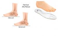 QPower Premium Moisturizing Gel Cushion for Feet, 12.99, Groupon,